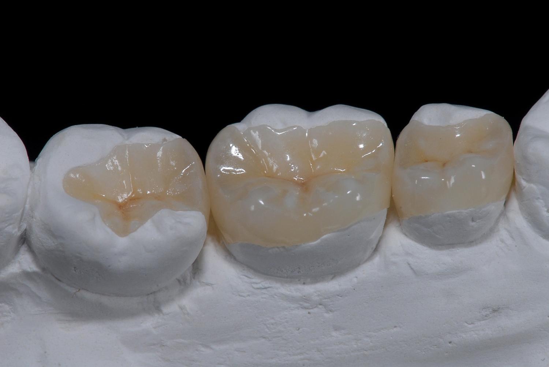 Materiel de prothesiste dentaire